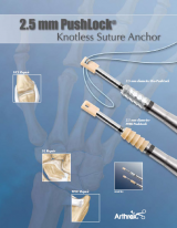 2.5 mm PushLock Knotless Suture Anchor