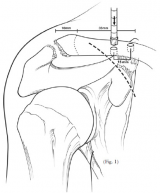 Anatomic Coracoclavicular Reconstruction