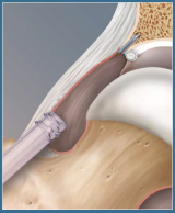 Acetabular Labral Repair using the PushLock Knotless Anchor System