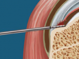Arthroscopic Diagnosis and Repair of Partial-Thickness Rotator Cuff Tears Using the PASTA Depth Guide