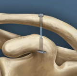 Arthroscopic Stabilization of Acute Acromioclavicular Joint Dislocation using the TightRope System