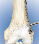 Femoral Opening Wedge Osteotomy System