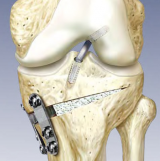 High Tibial Opening Wedge Osteotomy System using Modular-Biplanar Plates and OSferion B-TCP Osteotomy Wedge