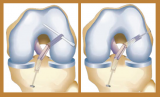 New Approaches to All-Inside ACL RetroConstruction