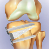 Tibial Opening Wedge Osteotomy System with Titanium Plates and Screws and HATriC Osteotomy Wedge